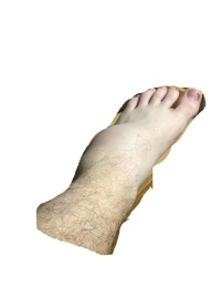 sprained ankle just the foot